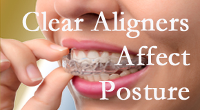 Clear aligners influence posture which Burlington and Hamilton chiropractic helps.