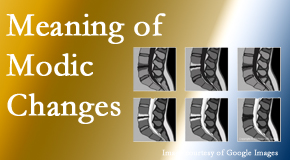 Spinal Care Clinic sees many back pain and neck pain patients who bring their MRIs with them to the office. Modic changes are often seen.