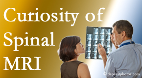 Burlington and Hamilton MRIs for spinal stenosis may be revealing…or confusing.