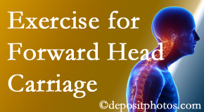 Burlington and Hamilton chiropractic treatment of forward head carriage is two-fold: manipulation and exercise.