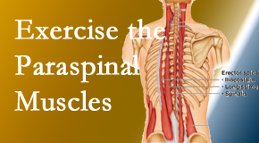 Spinal Care Clinic explains the importance of paraspinal muscles and their strength for Burlington and Hamilton back pain relief.