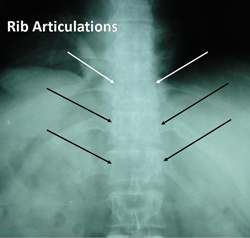 thoracic spine rib attachment